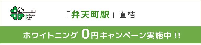 「弁天町駅」直結 ホワイトニング0円キャンペーン実施中!!